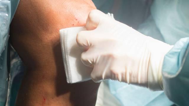 Slavoncu nakon operacije ostala gaza u koljenu: 'Žena je vidjela da viri, odšteta je baš smiješna'