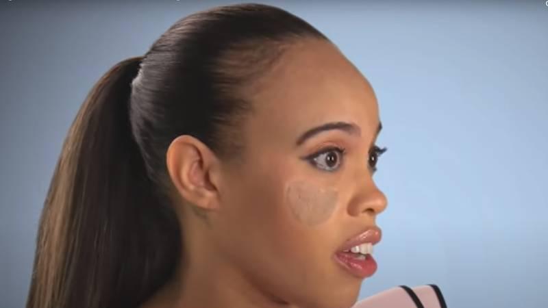 Presadili su joj kožu s prepone: 'Na licu mi rastu stidne dlake!'