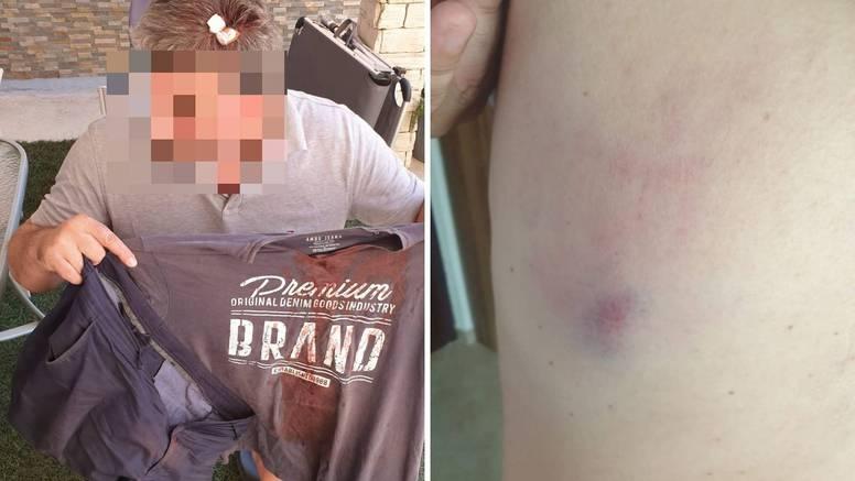 Pretučeni Zagrepčanin sve je napadače kazneno prijavio; policija nastavlja s izvidima