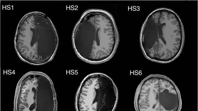 Ljudi s pola mozga: Imaju iste funkcije, mozak se prilagodio