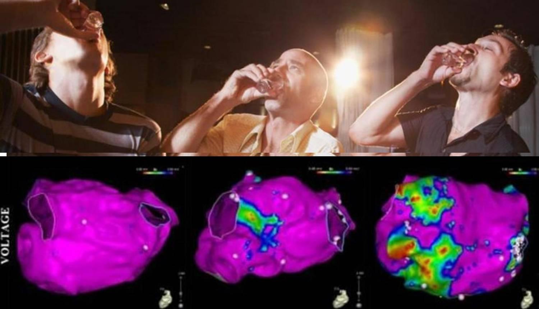 Snimke pokazuju kako na naše srce utječe ispijanje alkohola