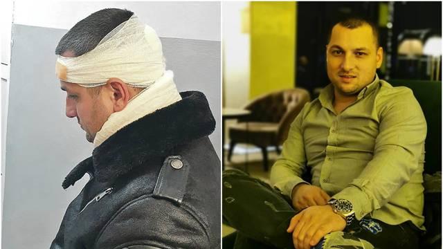 Ponovno skandal u regiji: Folk pjevača udarili bocom u glavu