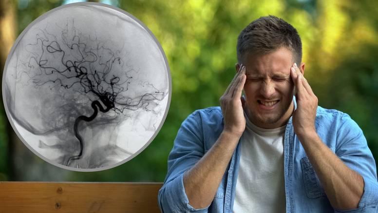 Hrvatski dan moždanog udara: Drugi je najčešći uzrok smrti, naučite prepoznati  simptome