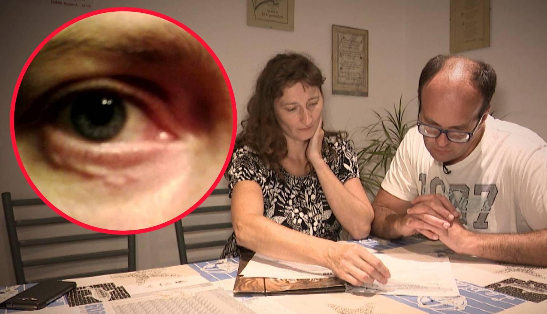 Mireli je ugriz komarca 'donio' crva u oku: 'Osjetim gmizanje'