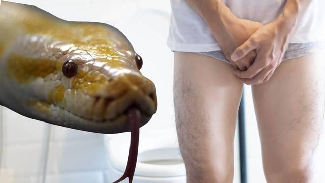 Piton mu je zagrizao penis i sad ima tri šava i jednu želju: Samo da se moj 'veseljko' oporavi