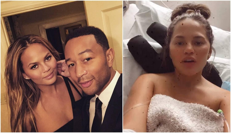 Chrissy je hitno hospitalizirana, krvari u trudnoći: Beba je dobro