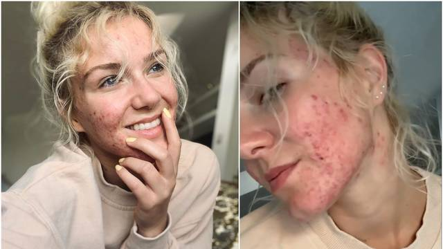 Zsa Zsa pokazala prištiće: Dosta je laži, ovako izgleda moja koža