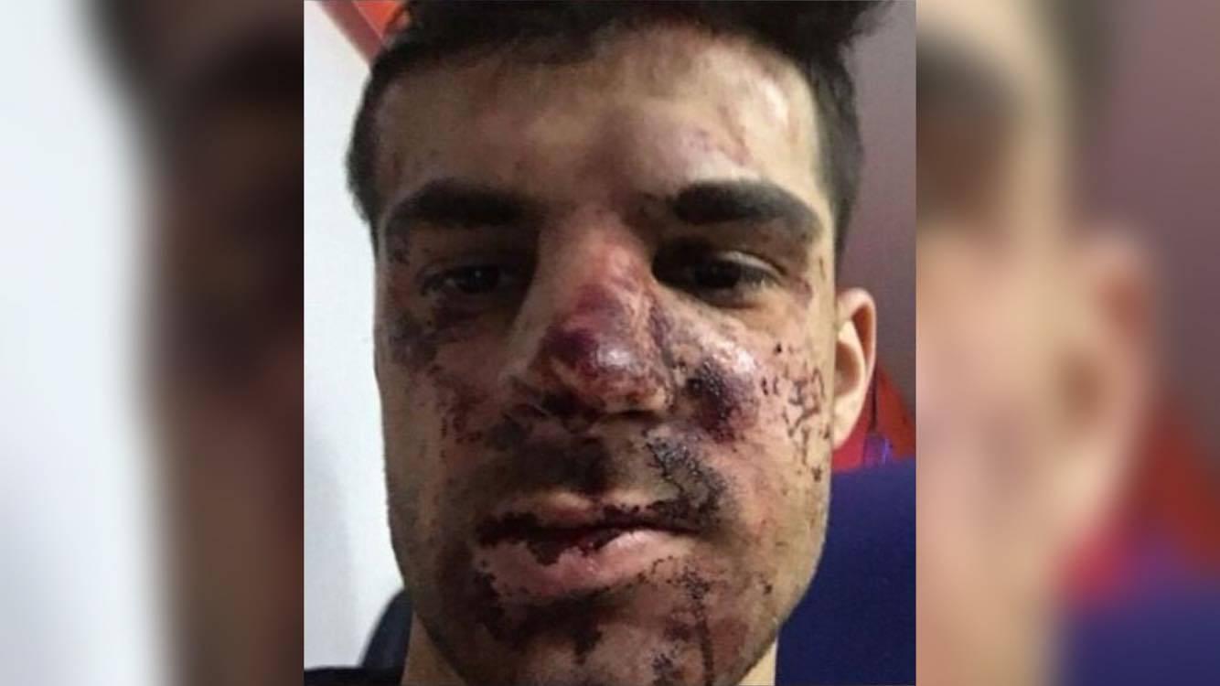 Užasne ozljede igrača Zenita: Pretukli ga zbog - parkiranja!