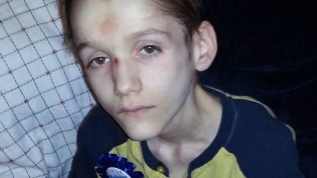Izgladnjivali su sina do smrti: 'Bio je kao mumija, bez želuca'