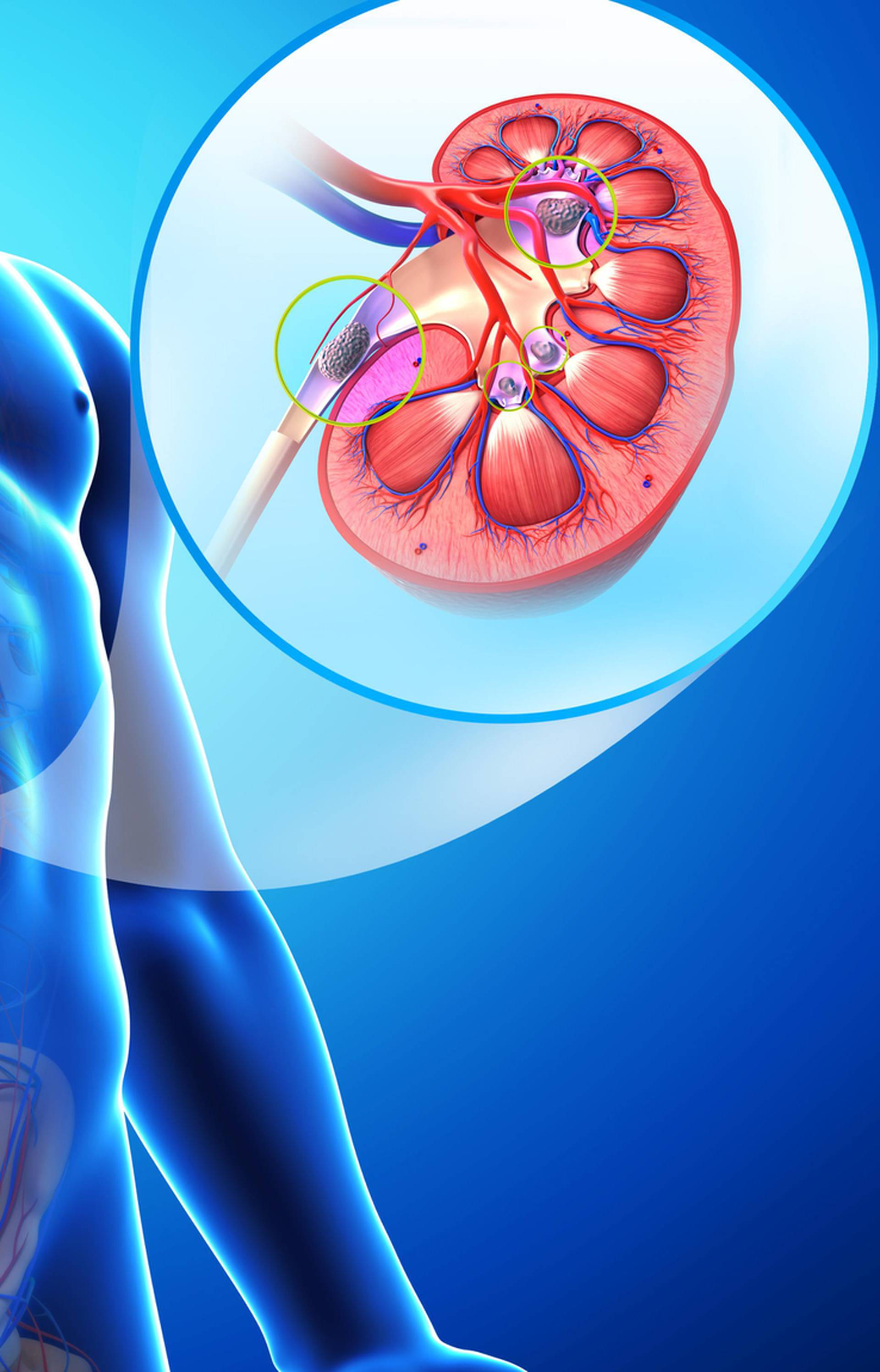 Pazite: Debljina, dehidracija i tlak krivci su za bolne kamence