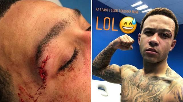 Sve za pobjedu: Depay zabio gol pa dobio šavove iznad oka