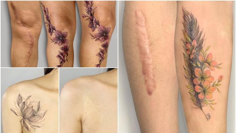 Tetovira ožiljke i tako pomaže ljudima vratiti samopouzdanje