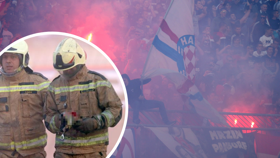 Vatrogasci poručili Torcidi: Ovo nije prvi put, razgovarat ćemo!