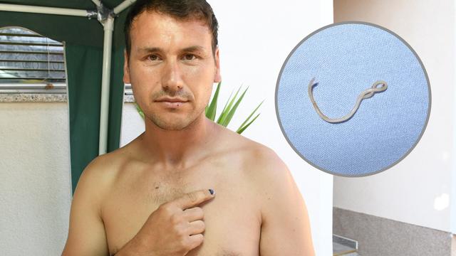 Slavonac Milan (34): 'Paraziti mi gmižu tijelom već 4 godine, ne mogu ih se nikako riješiti'
