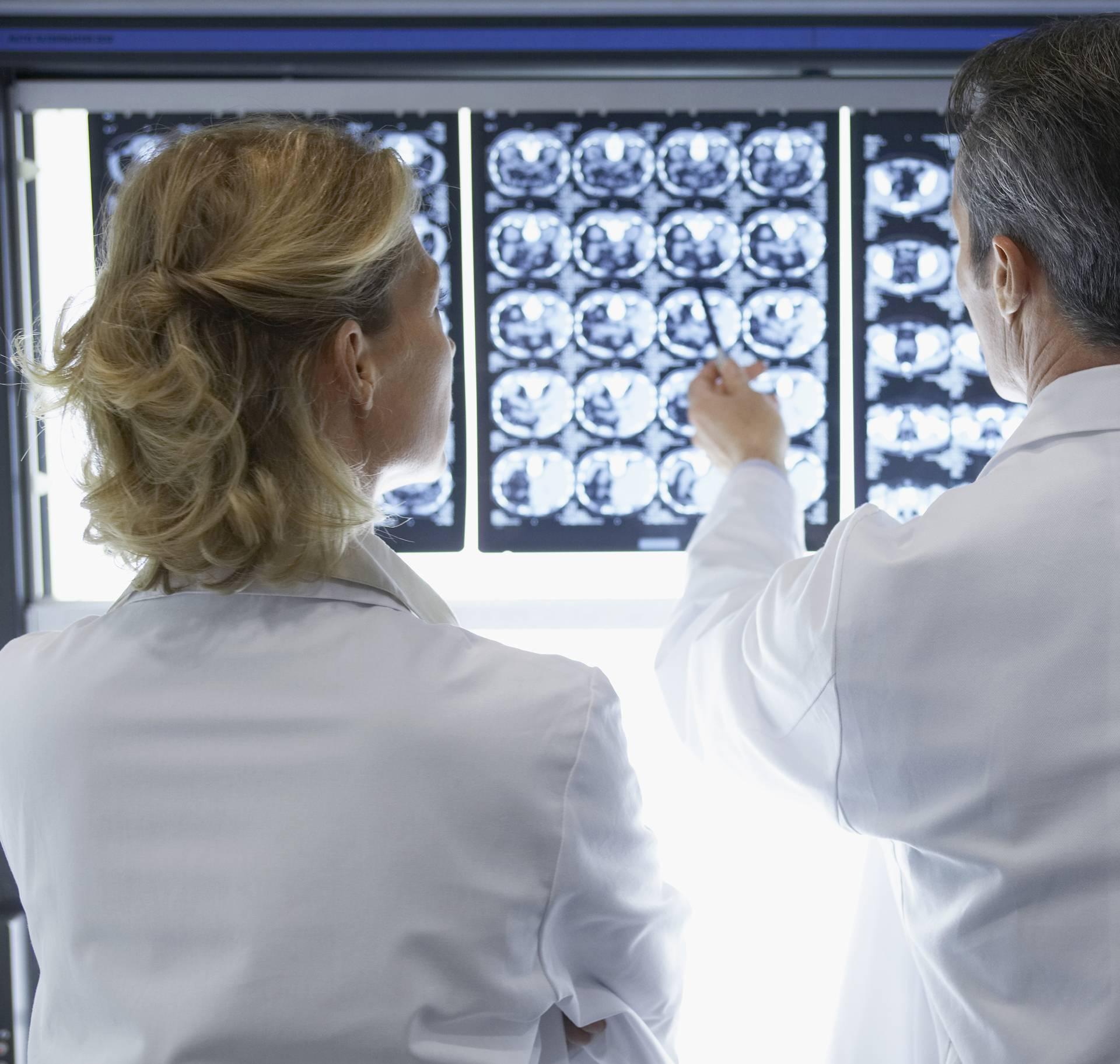 Ženi (69) mozak pojela ameba nakon ispiranja nosa vodom