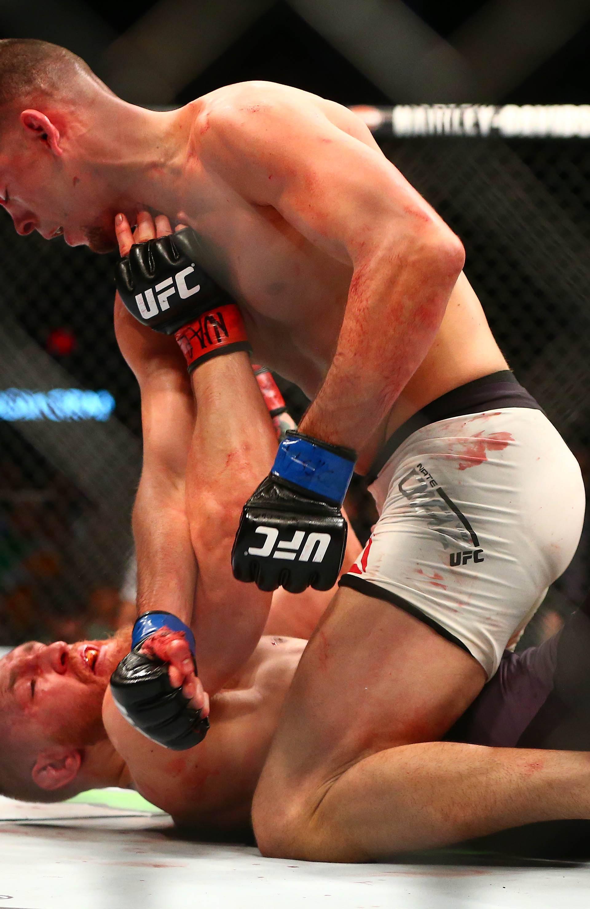 Nate Diaz: Ne želim skrivati da sam dopingiran, a UFC to hoće!