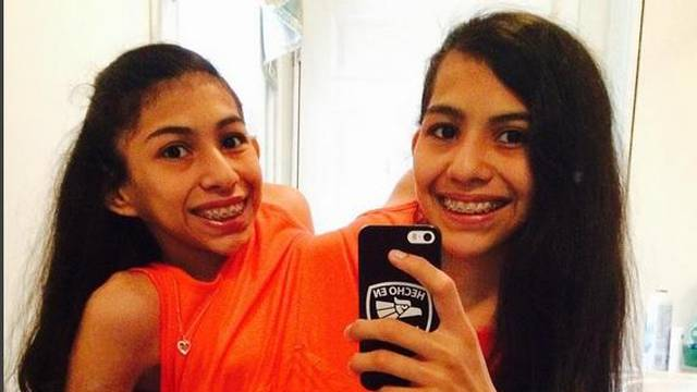 Spojene 16 godina: Sijamske blizanke ne žele da ih razdvoje