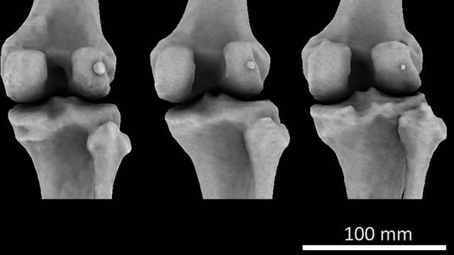 Ljudi su u dvadesetom stoljeću misteriozno dobili 1 kost više