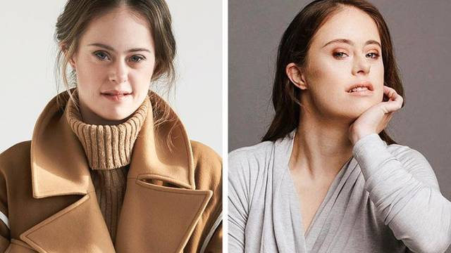 Model s Downom dokaz je kako nema samo 1 definicije ljepote