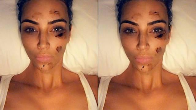 Kim šokirala tamnim mrljama na svom licu: Psorijaza je sra*e