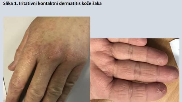 Dezinficijensi i rukavice iritiraju kožu: Evo kako možete umanjiti oštećenja na svojim rukama