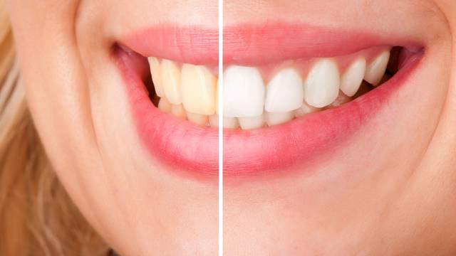 Genijalan trik kako izbijeliti zube u samo nekoliko minuta