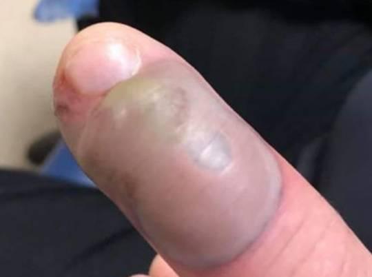 Grizao nokte pa zaradio odurnu smrtonosnu infekciju na prstu