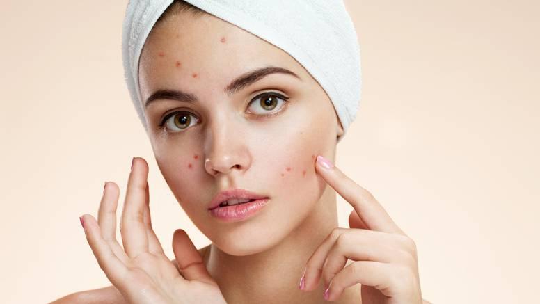 Dermatolozi: Ovo će vas riješiti mitesera i oni se neće vraćati