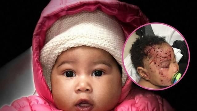 SAD: Bebu izgrizao rakun