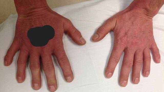 Šest prstiju