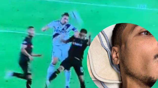 Zlatan udario suparnika laktom u glavu, napukla mu lubanja...