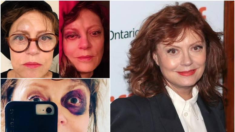 Glumica nakon potresa mozga: 'Šljiva' na oku, osmijeh na licu