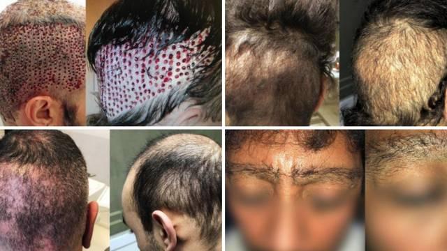 Strava i užas: Htjeli su lijepu kosu, a završili su unakaženi
