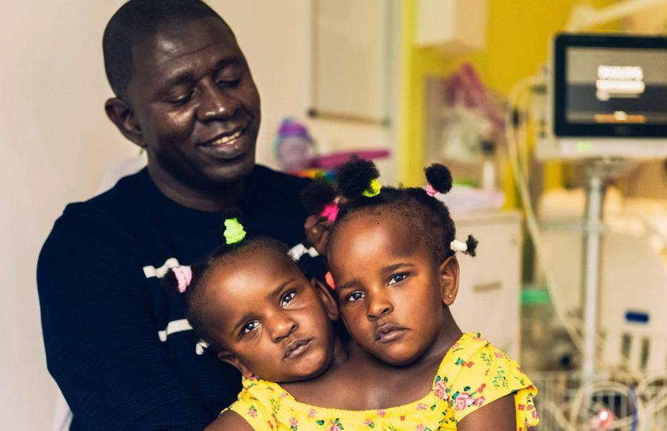 Drama oca sijamskih blizanki: Kako da odlučim koja će živjeti