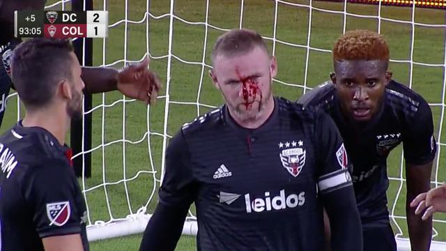 Neymare, gledaj!  Rooney  krvav i slomljen nije pravio dramu...