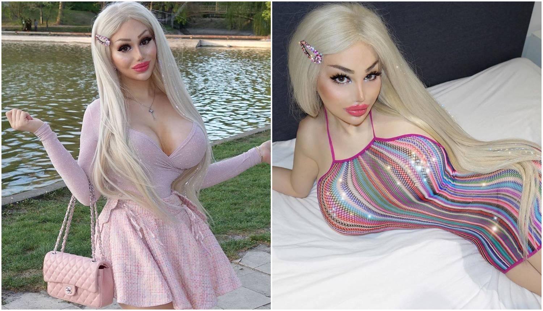 Potrošila na operacije 900.000 kn: 'Ne mogu naći posao, moj vrući izgled izluđuje muškarce'
