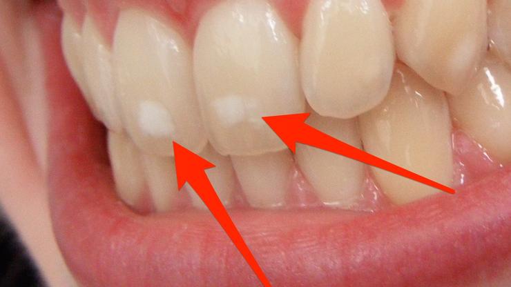 Nastanak mrlja na zubima