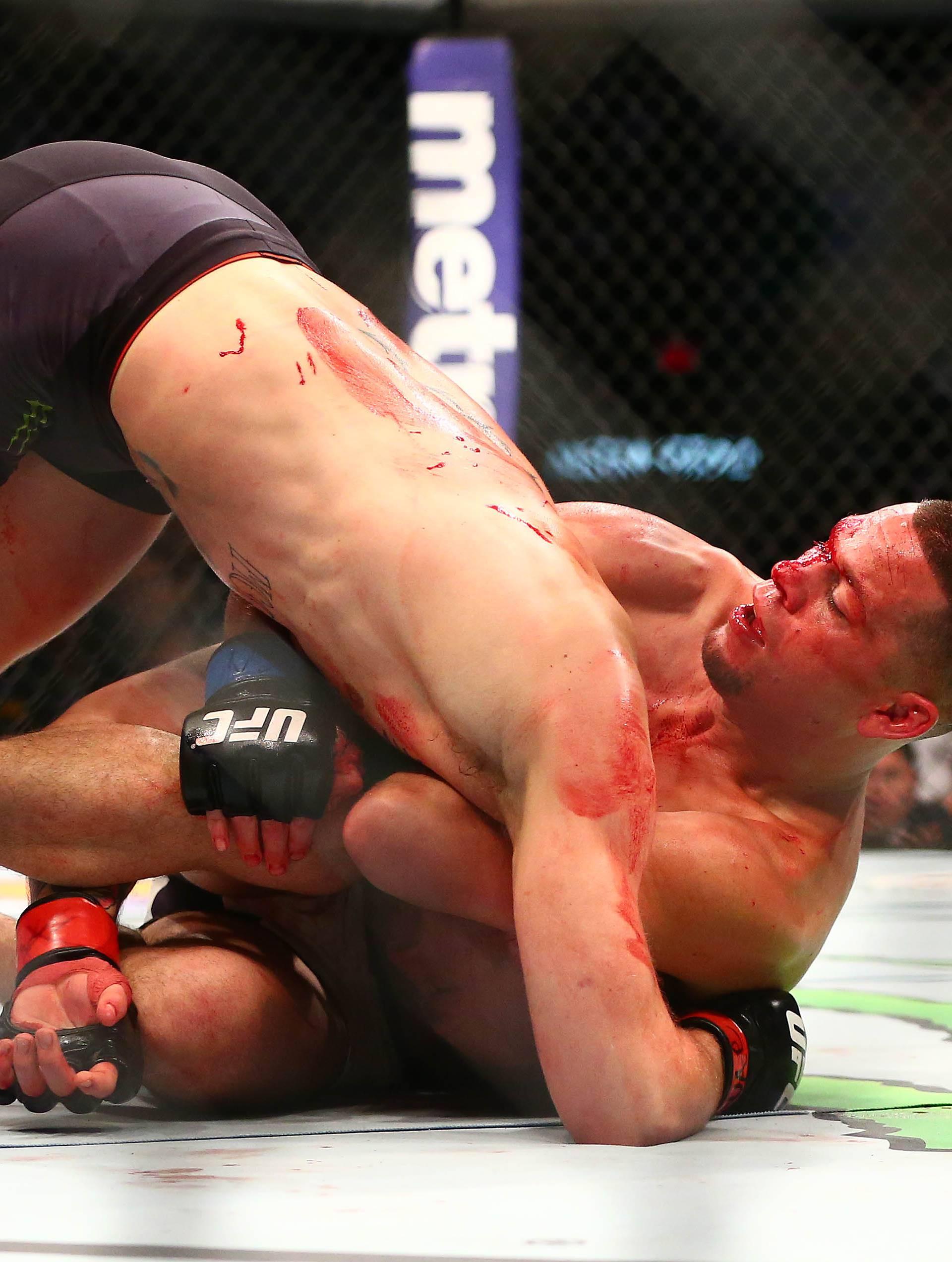 Zeus Tipado: Conor McGregor je odbio novu borbu s Diazom