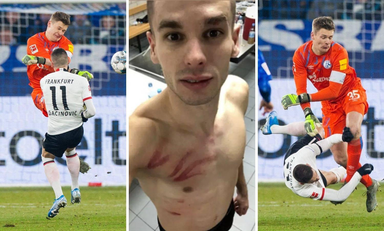 Krvnički na Srbina: Gaćinović pokazao ožiljak nakon starta