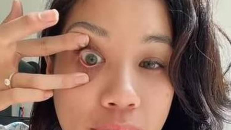 Bez dodirivanja prstima: Evo kako skinuti leću u par sekundi