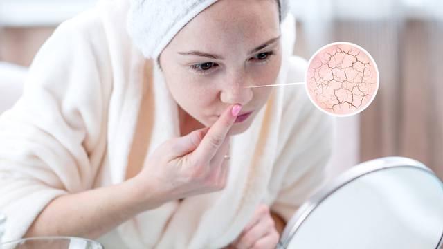 Top 5 razloga zašto je koža oko nosa suha, crvena i perutava