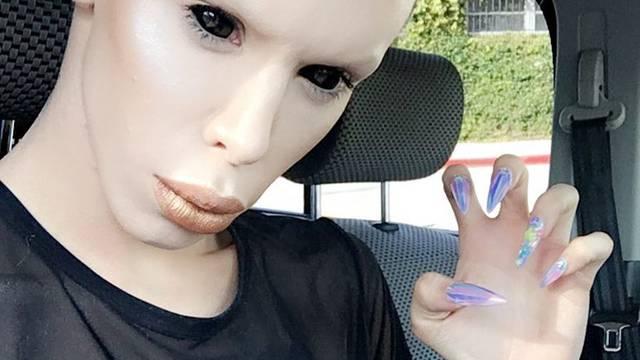 Vinny želi biti vanzemaljac bez spola: Uklonit će si genitalije
