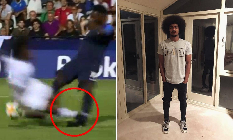 Nije mu pomogao ni psihijatar: Englez divljački ozlijedio igrača