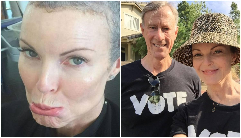 'Očajna kućanica' i njezin muž u zajedničkoj borbi protiv raka