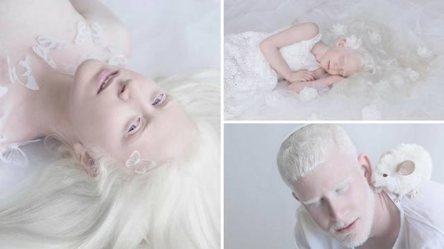 Fotografira albino ljude: 'Oni su nevjerojatni, hipnotički lijepi'