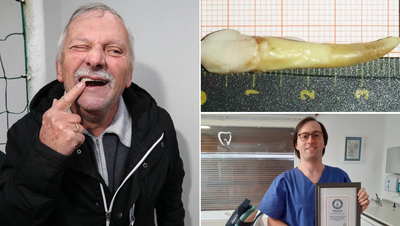 Mijo je imao najdužeg: 'Doktor mi je izvadio zub za Guinnessa'