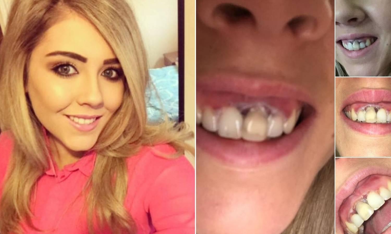 Izbijelila zube u kozmetičkom salonu pa dobila upalu desni