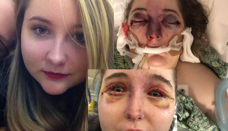 Liječnici zbunjeni: Djevojci (15) lice toliko oteklo da je oslijepila