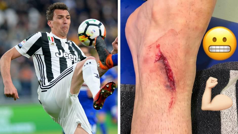 Pogledajte s kakvom je nogom Mandžukić igrao protiv Intera!