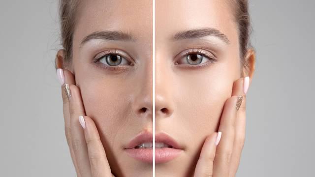 Uz pravilnu njegu zaustavite širenje pora i nastanak mitesera